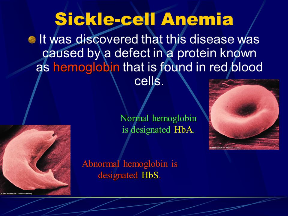 Sickle-cell Anemia It was discovered that this disease was caused by a defect in a protein known as hemoglobin that is found in red blood cells.