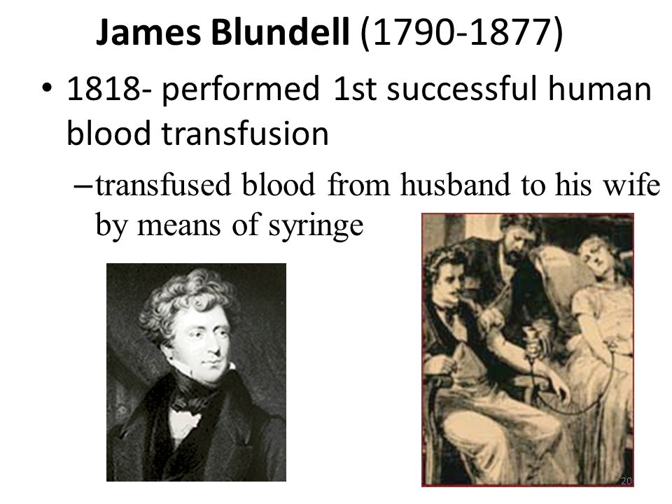 James Blundell (1790-1877) 1818- performed 1st successful human blood transfusion. transfused blood from husband to his wife by means of syringe.
