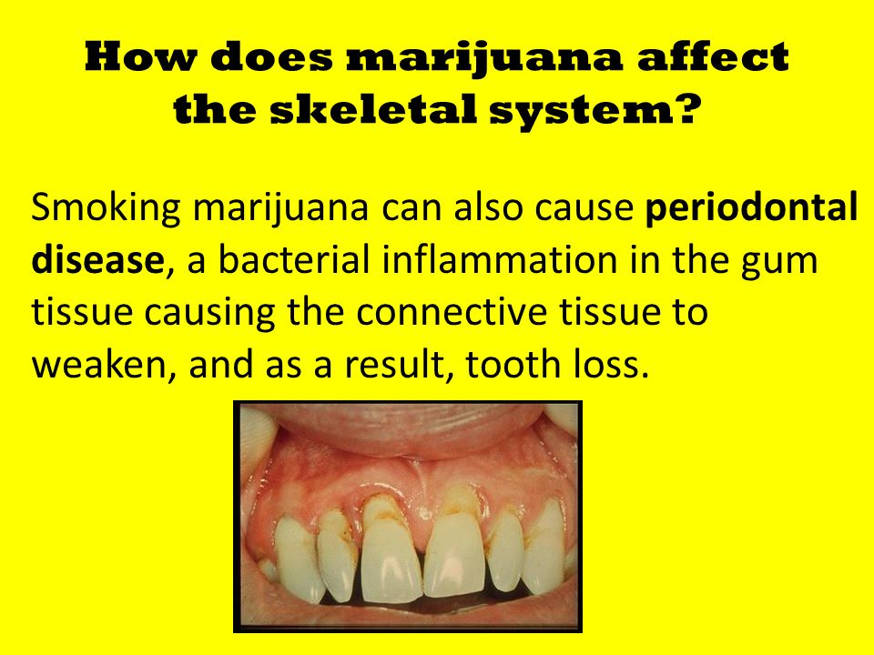How does marijuana affect the skeletal system