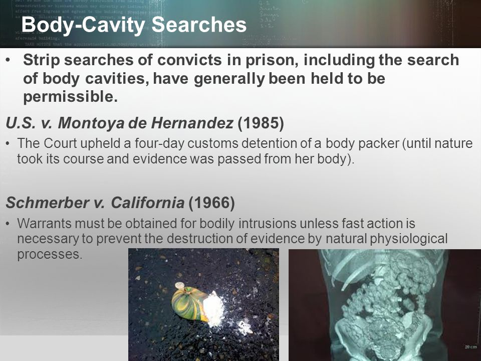 Body-Cavity Searches Strip searches of convicts in prison, including the search of body cavities, have generally been held to be permissible.