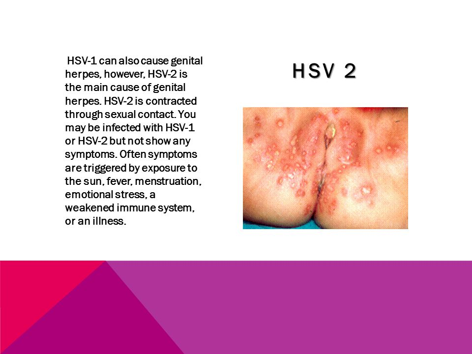 HSV-1 can also cause genital herpes, however, HSV-2 is the main cause of genital herpes. HSV-2 is contracted through sexual contact. You may be infected with HSV-1 or HSV-2 but not show any symptoms. Often symptoms are triggered by exposure to the sun, fever, menstruation, emotional stress, a weakened immune system, or an illness.