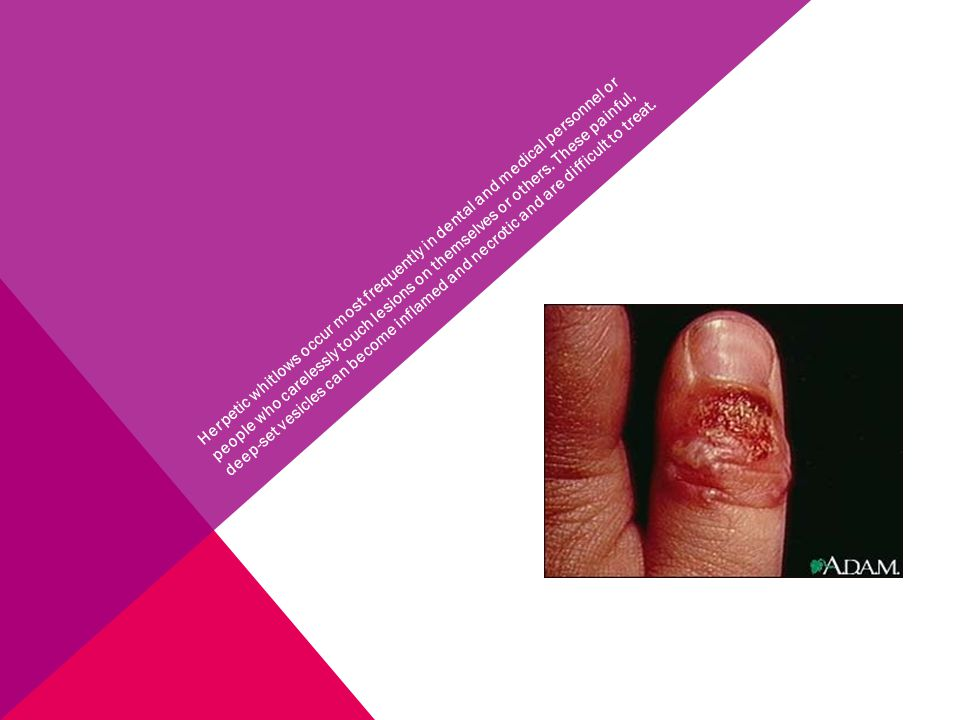 Herpetic whitlows occur most frequently in dental and medical personnel or people who carelessly touch lesions on themselves or others.
