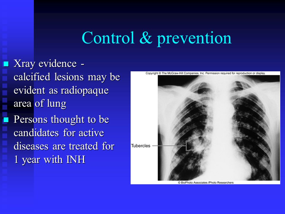 Control & prevention Xray evidence - calcified lesions may be evident as radiopaque area of lung.