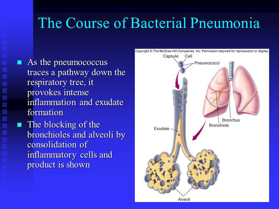 The Course of Bacterial Pneumonia