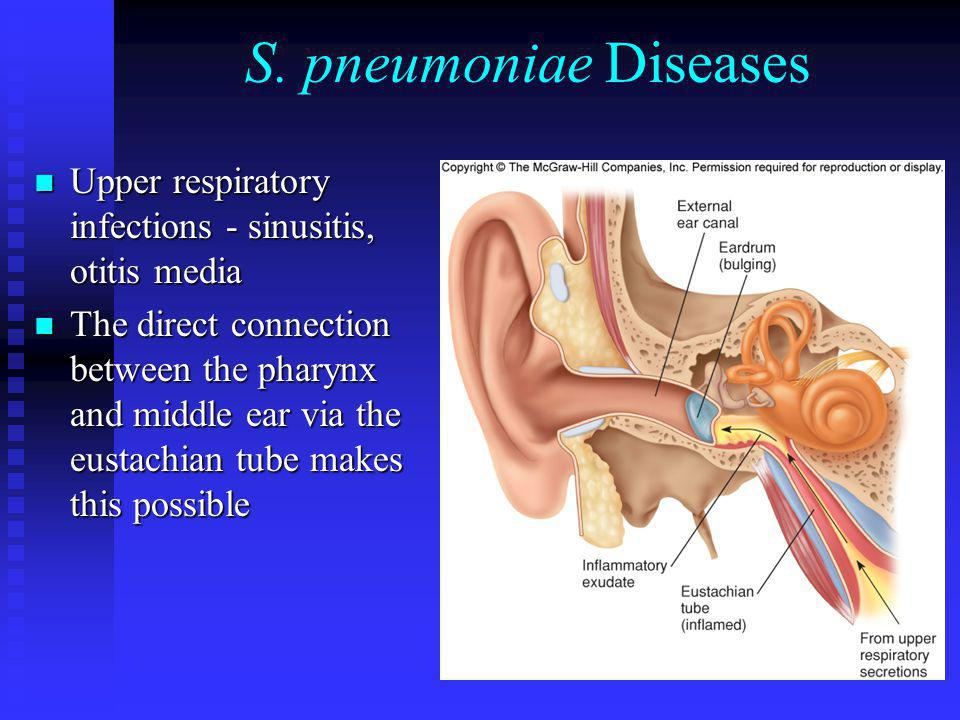 S. pneumoniae Diseases Upper respiratory infections - sinusitis, otitis media.