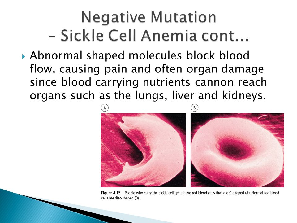 Negative Mutation – Sickle Cell Anemia cont...