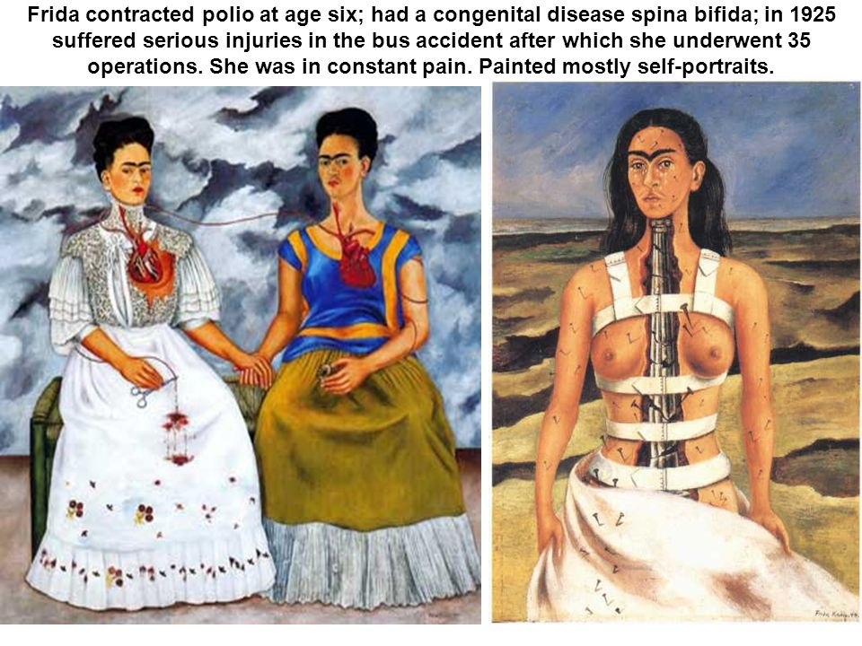 Frida contracted polio at age six; had a congenital disease spina bifida; in 1925 suffered serious injuries in the bus accident after which she underwent 35 operations.
