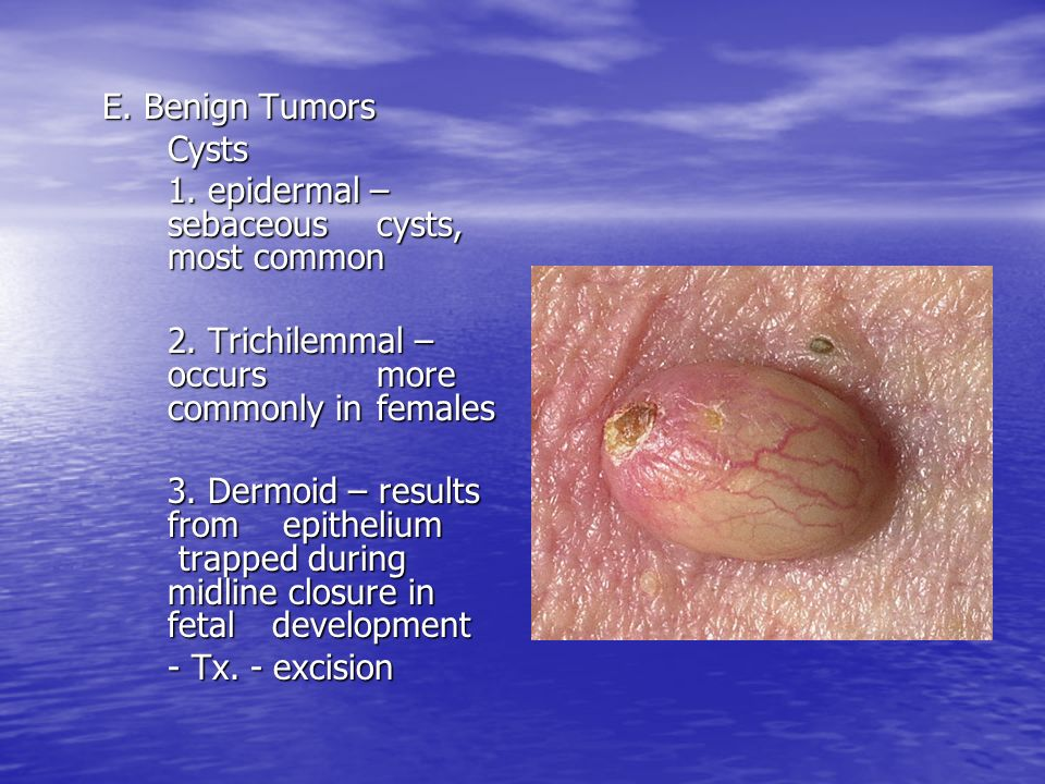 E. Benign TumorsCysts. 1. epidermal – sebaceous cysts, most common. 2. Trichilemmal – occurs more commonly in females.