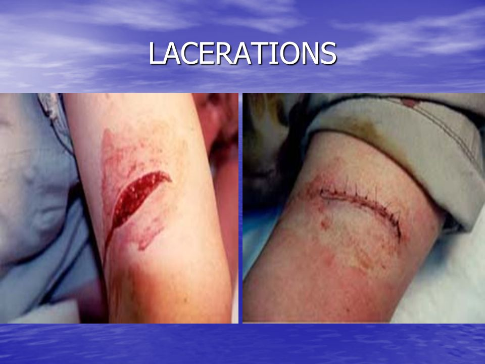 LACERATIONS