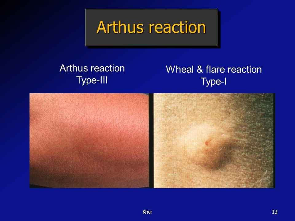 Arthus reaction Arthus reaction Wheal & flare reaction Type-III Type-I