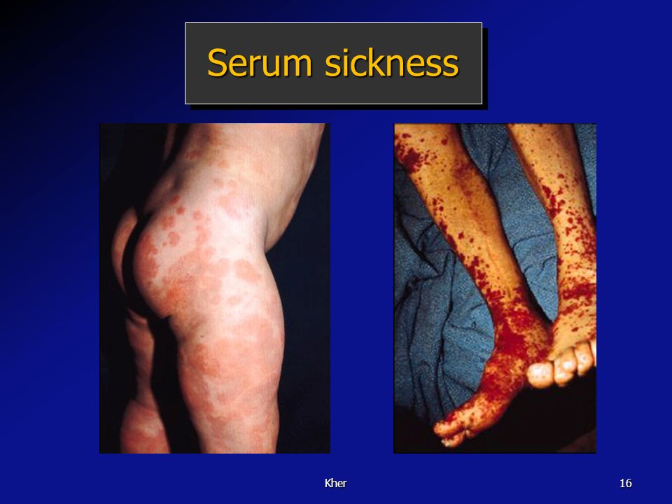 Serum sickness Kher