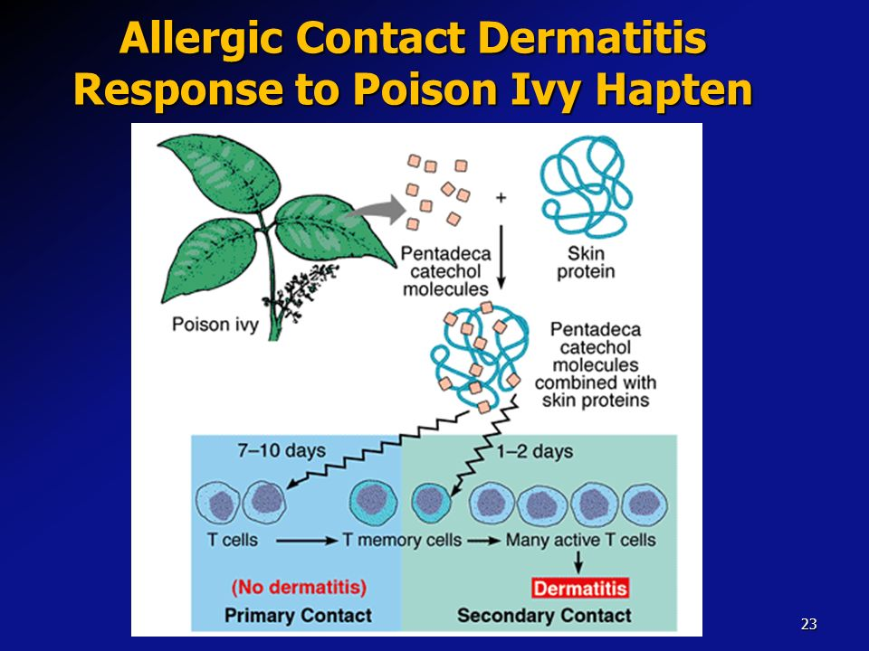 Allergic Contact Dermatitis Response to Poison Ivy Hapten