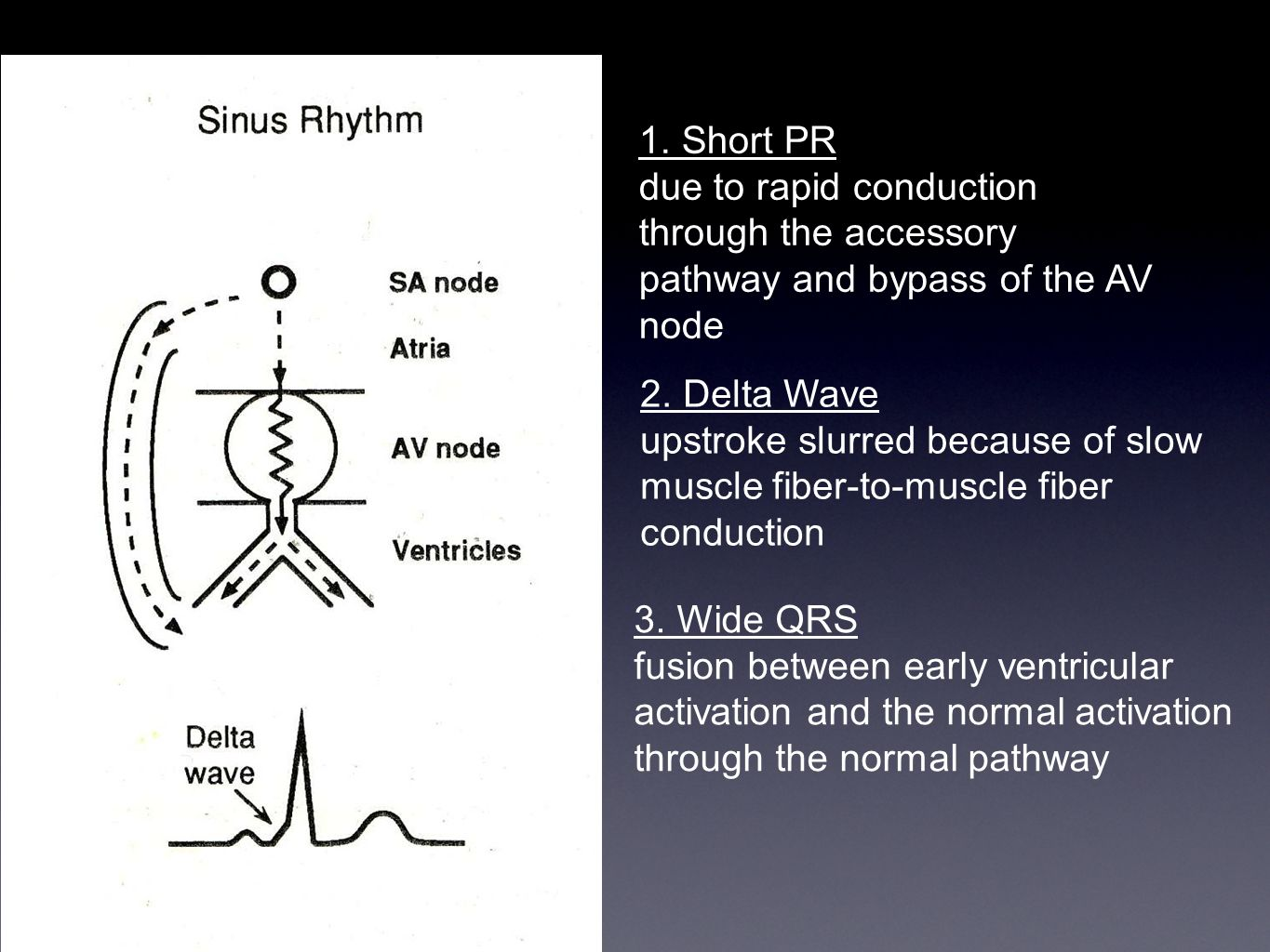 1. Short PR due to rapid conduction through the accessory pathway and bypass of the AV node. 2. Delta Wave.