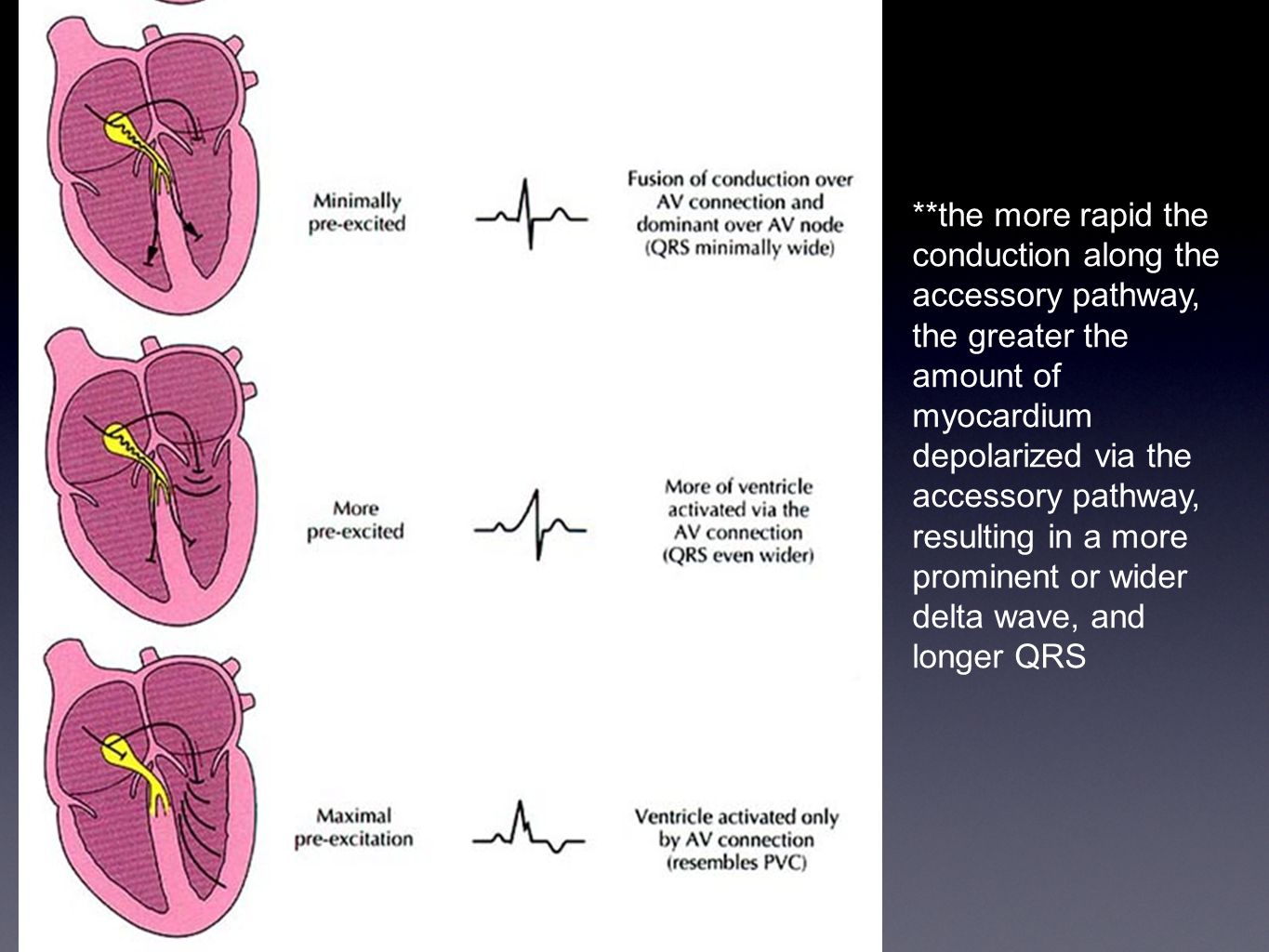 **the more rapid the conduction along the accessory pathway, the greater the amount of myocardium depolarized via the accessory pathway, resulting in a more prominent or wider delta wave, and longer QRS