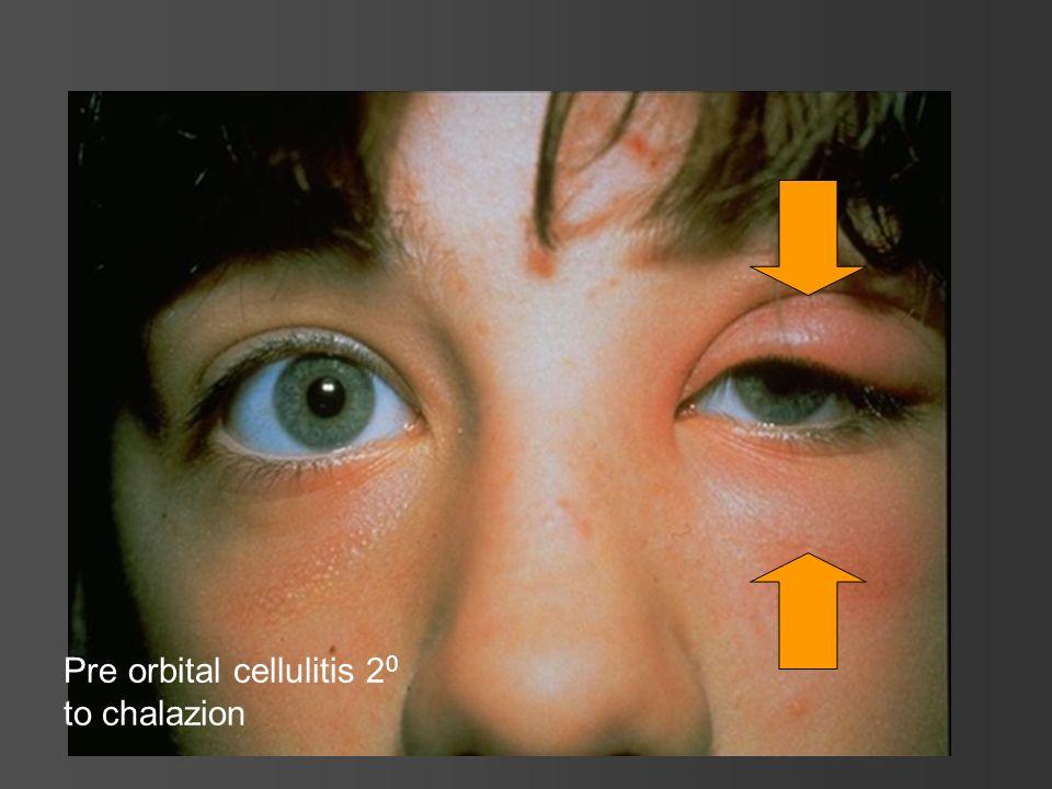 Pre orbital cellulitis 20 to chalazion
