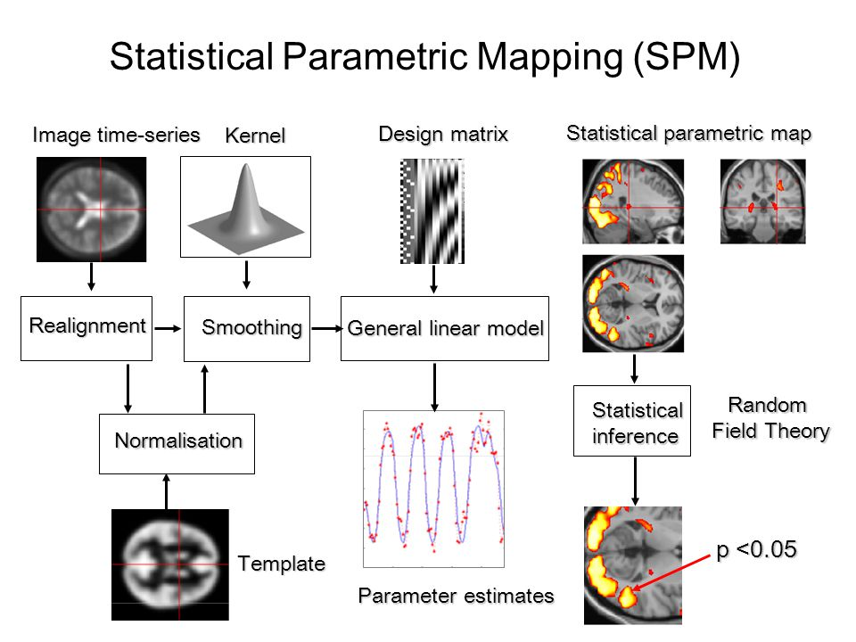 Statistical Parametric Mapping (SPM)
