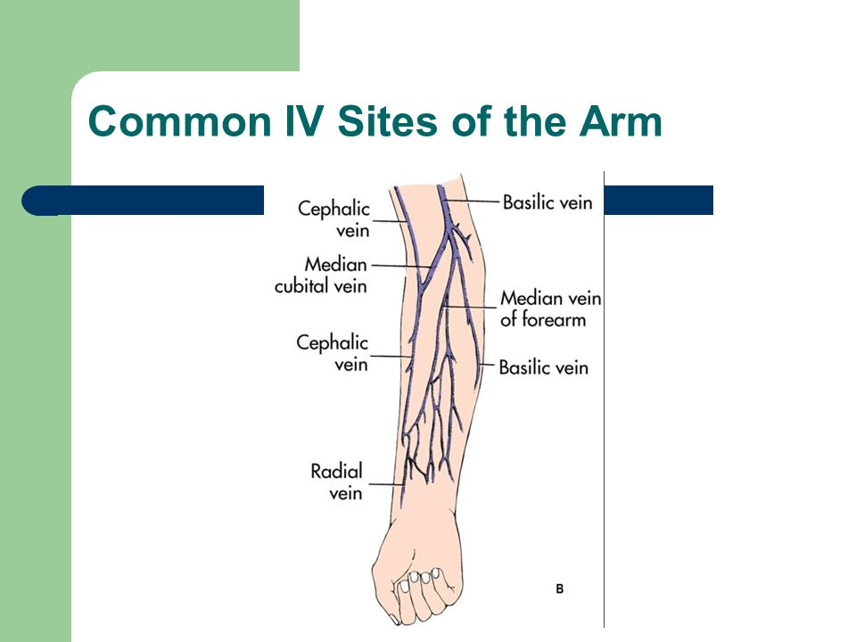 Common IV Sites of the Arm