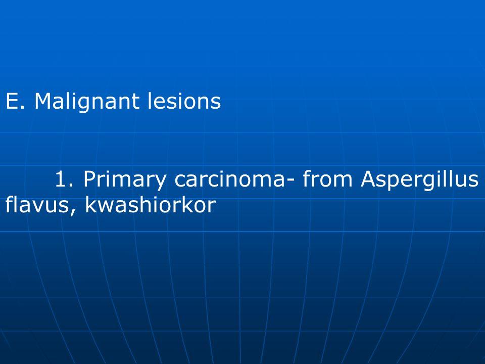 E. Malignant lesions 1. Primary carcinoma- from Aspergillus flavus, kwashiorkor