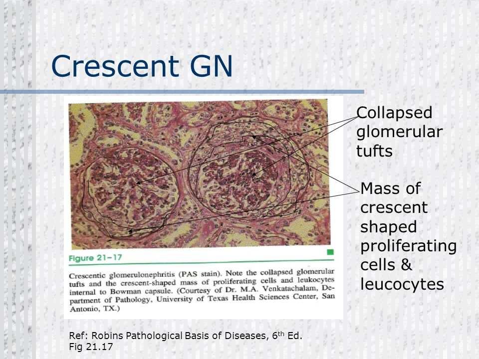 Crescent GN Collapsed glomerular tufts