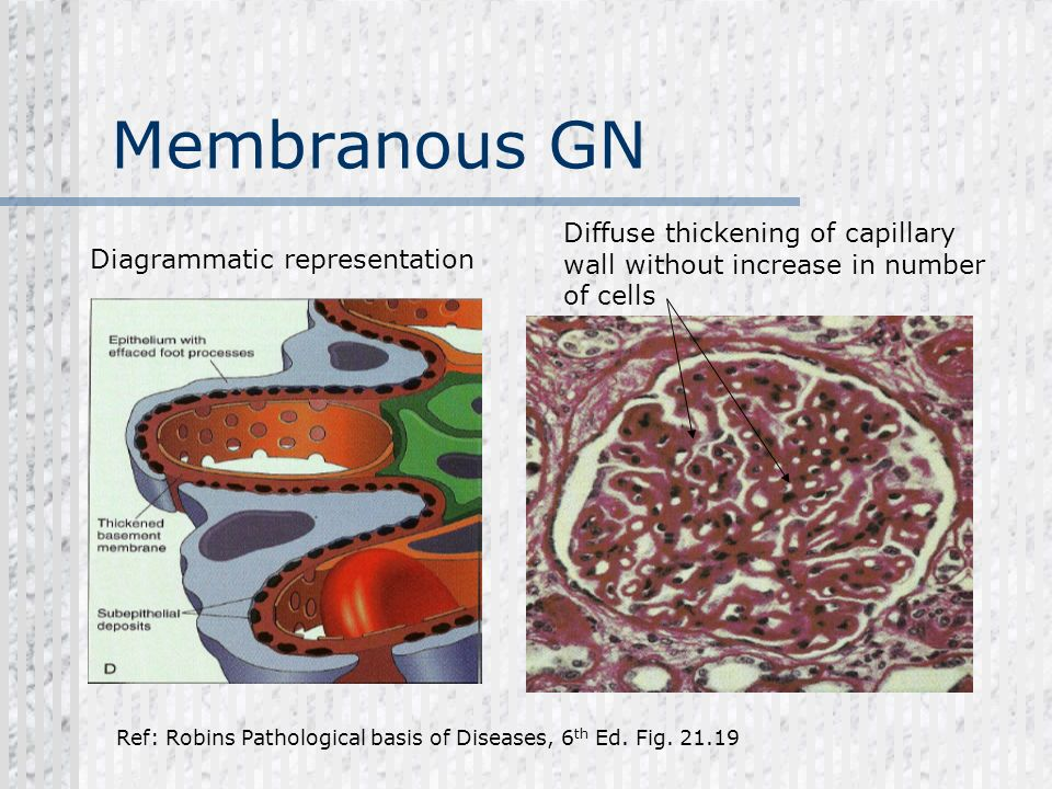 Membranous GN Diffuse thickening of capillary wall without increase in number of cells. Diagrammatic representation.