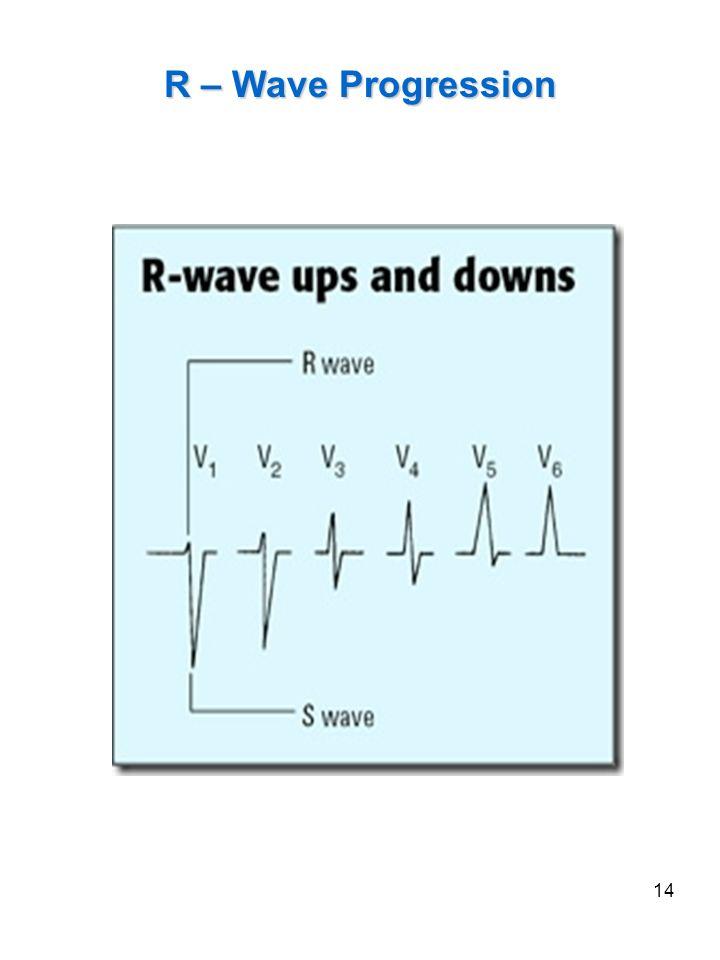 R – Wave Progression V3 is isoeletric or biphasic