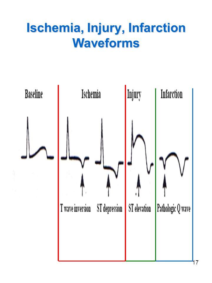 Ischemia, Injury, Infarction Waveforms
