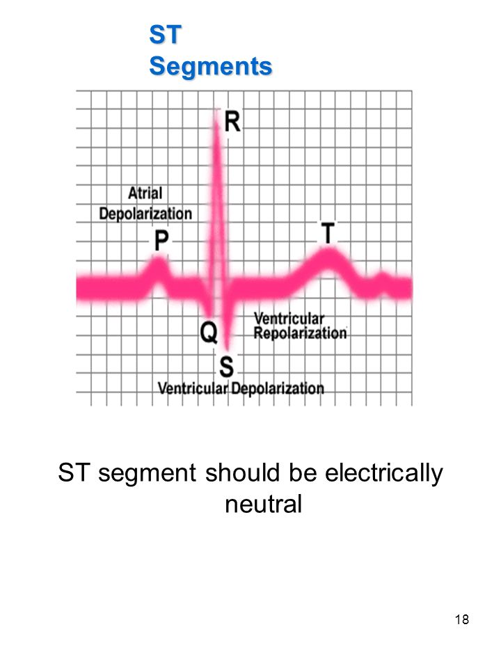 ST segment should be electrically neutral