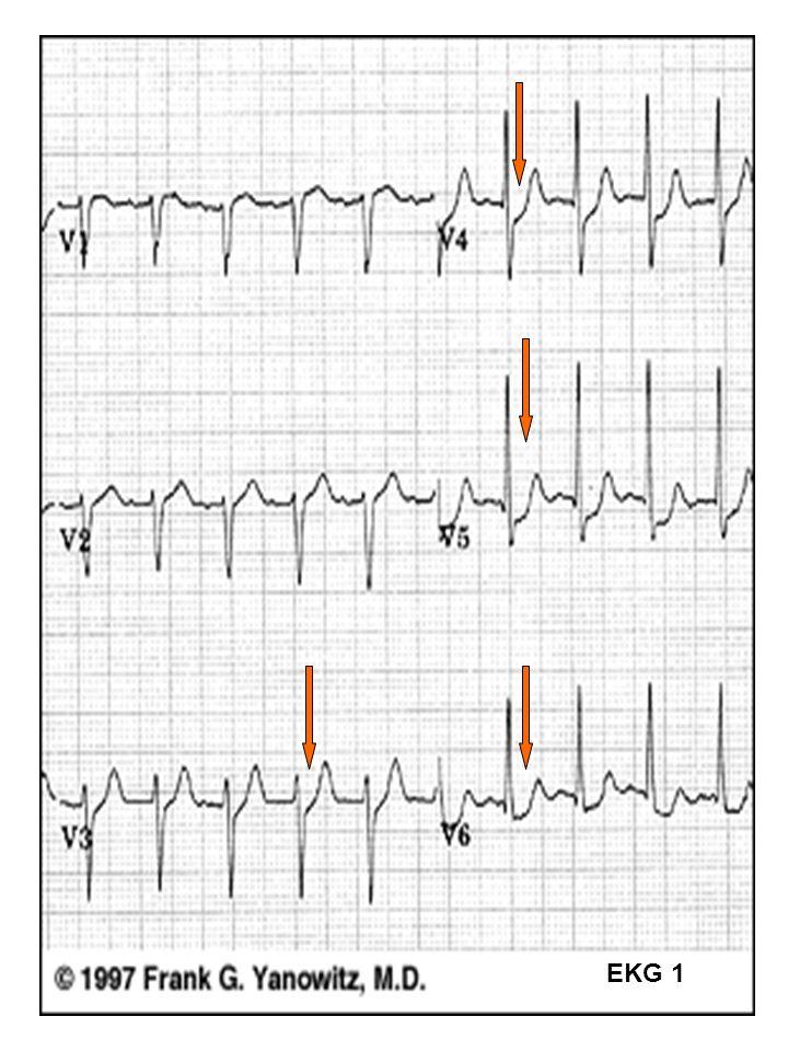 EKG 1