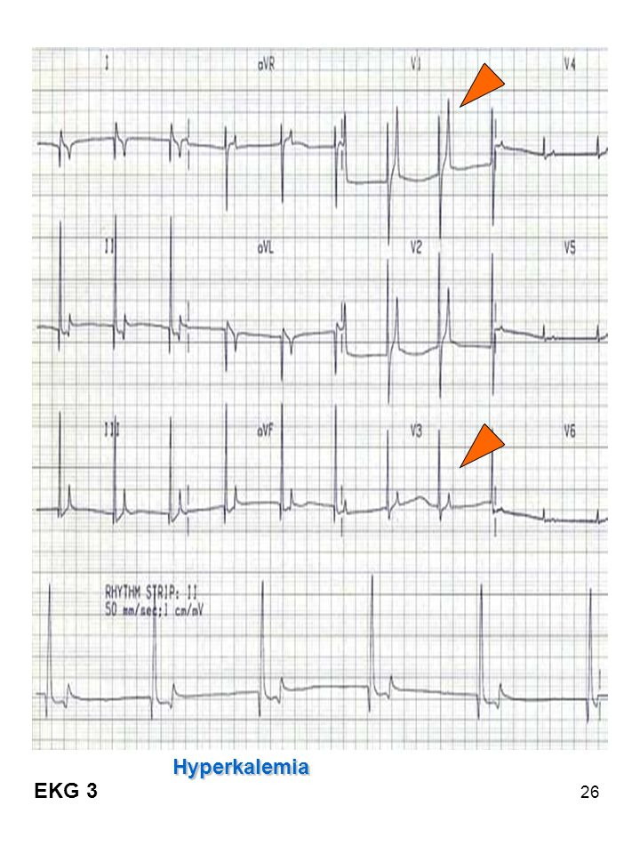 Elevated T waves – symmetrical pointed > 2/3 of QRS = hyperkalemia (6.5-7.0)