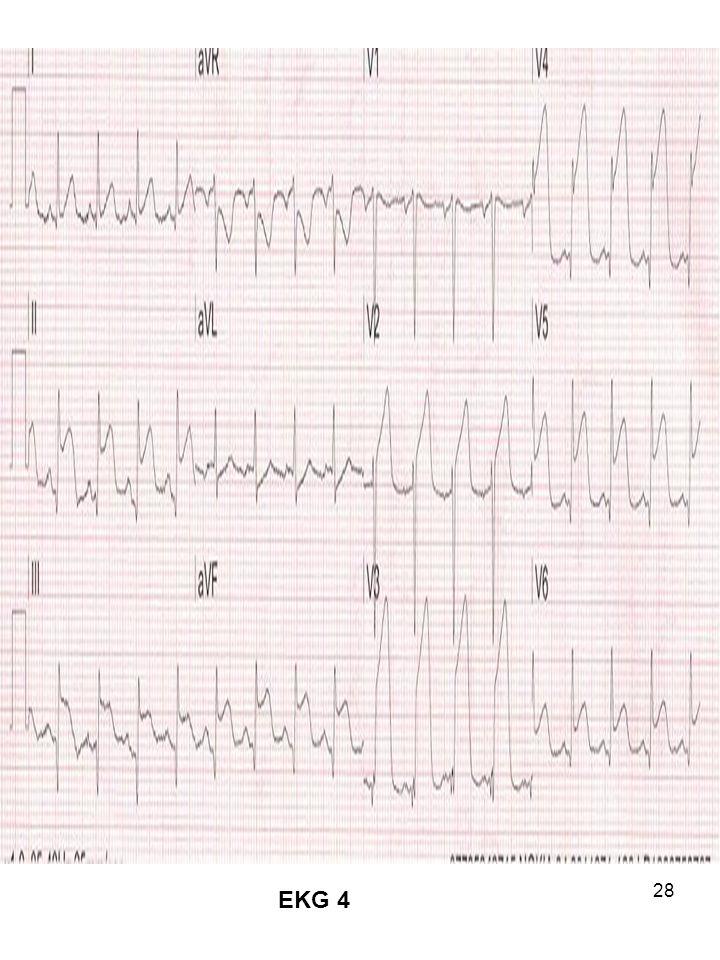 EKG 4
