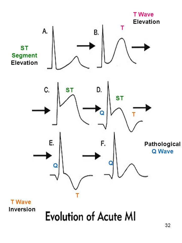 T Wave Elevation T ST Segment Elevation ST ST Q T Pathological Q Wave Q Q T T Wave Inversion