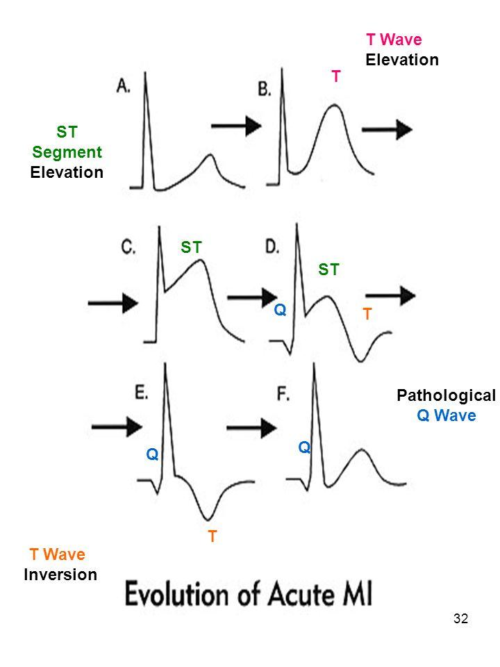 T Wave Elevation T ST Segment Elevation ST ST Q T Pathological Q Wave Q Q T T Wave Inversion