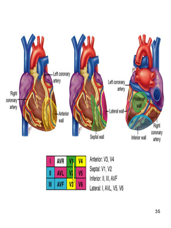 Localization of myocardial injury
