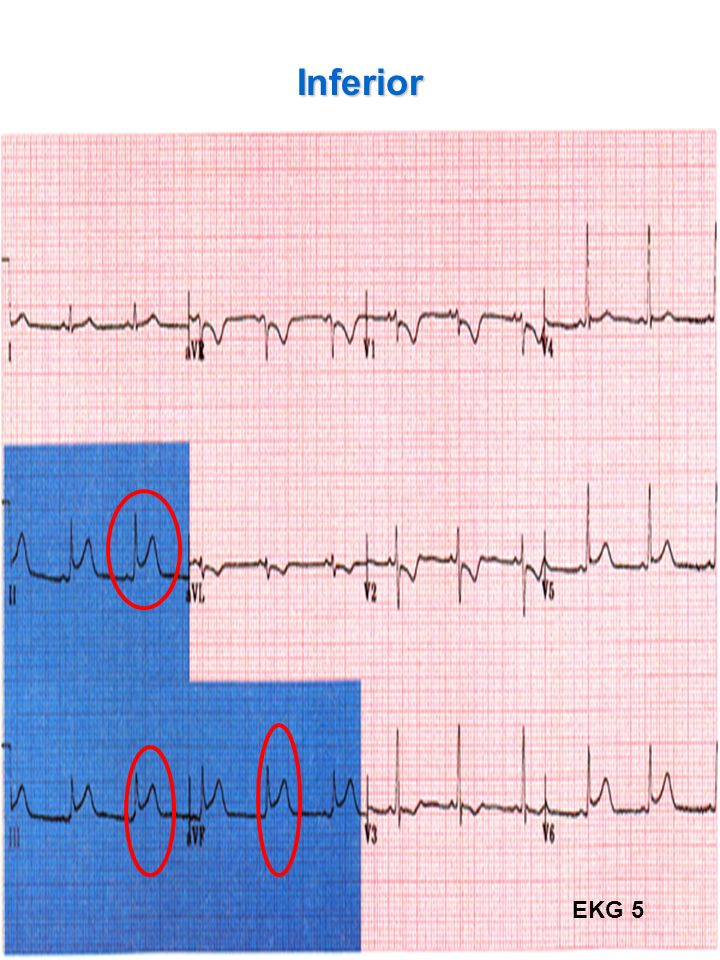 Inferior With Inferior Wall MI suspect Right Ventricular Wall Infarct. Signs of possible Right Ventricular Wall Infarct: