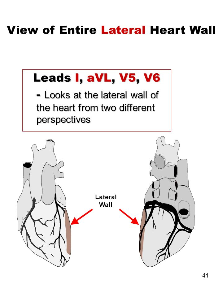 View of Entire Lateral Heart Wall