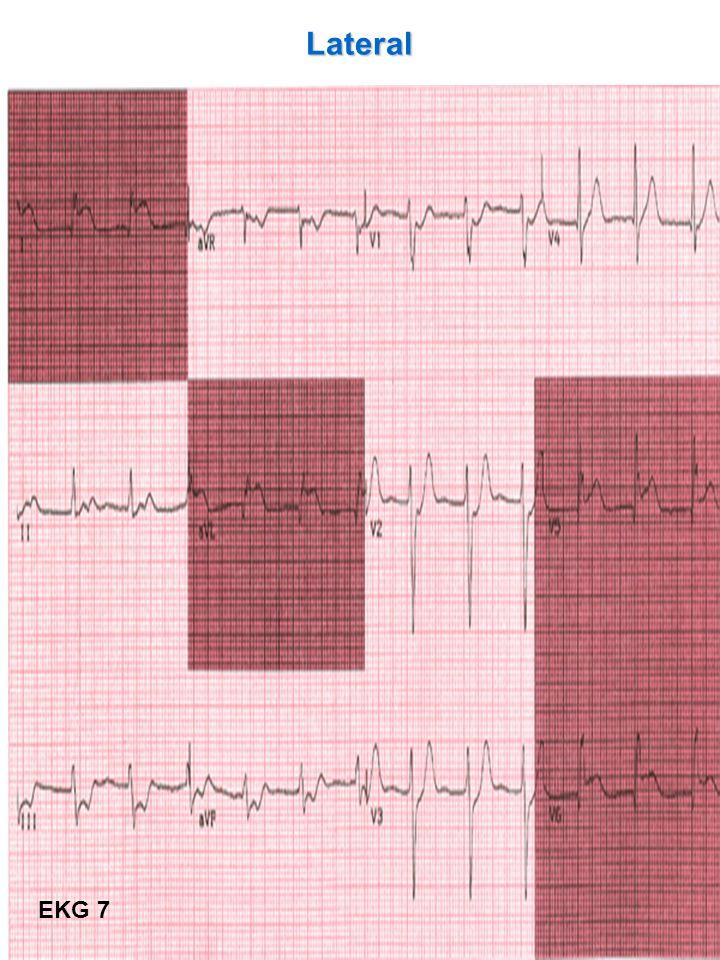 Lateral EKG 7
