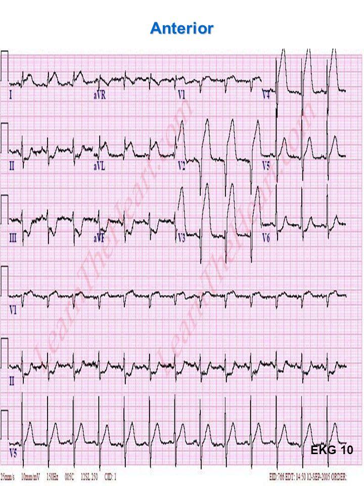 Anterior EKG 10