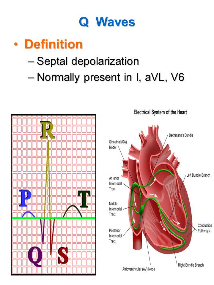 12-Lead EKG MEPN Level IV. - ppt video online download