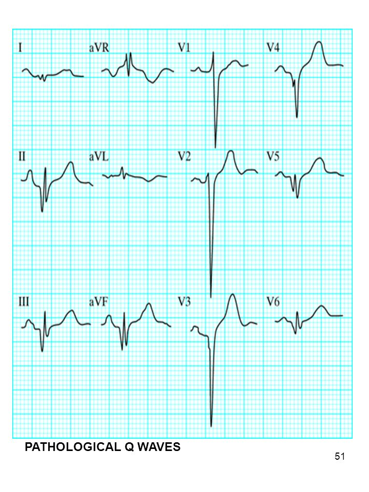 Part of inferior wall mi/pathological Q's