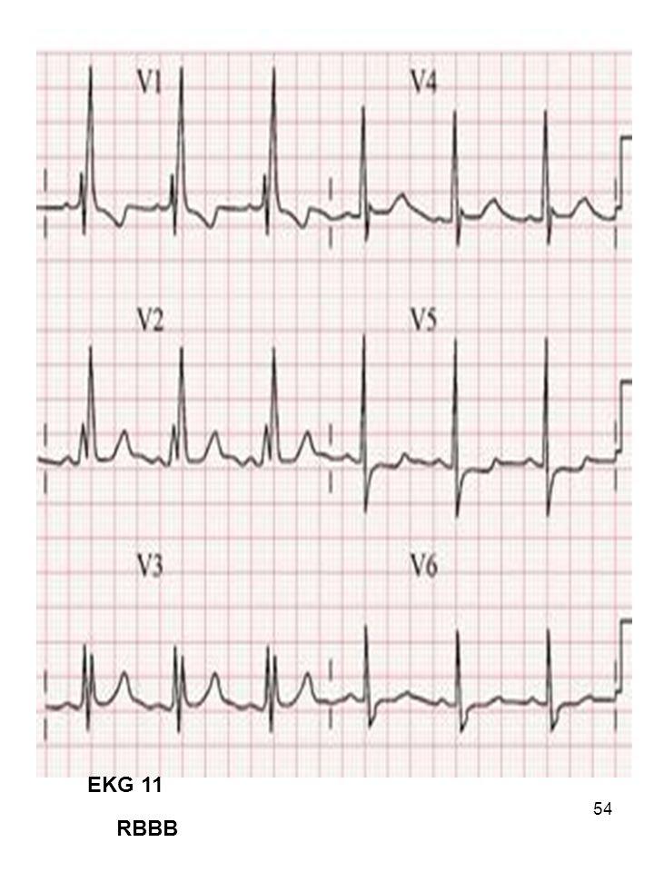 EKG 11 RBBB