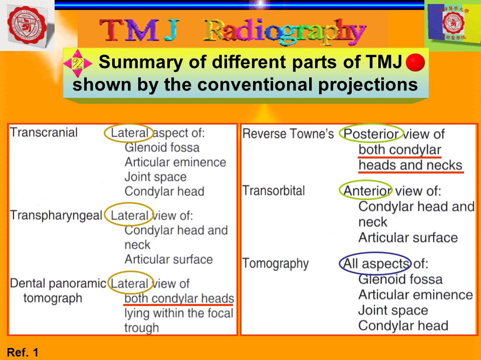 Summary of different parts of TMJ