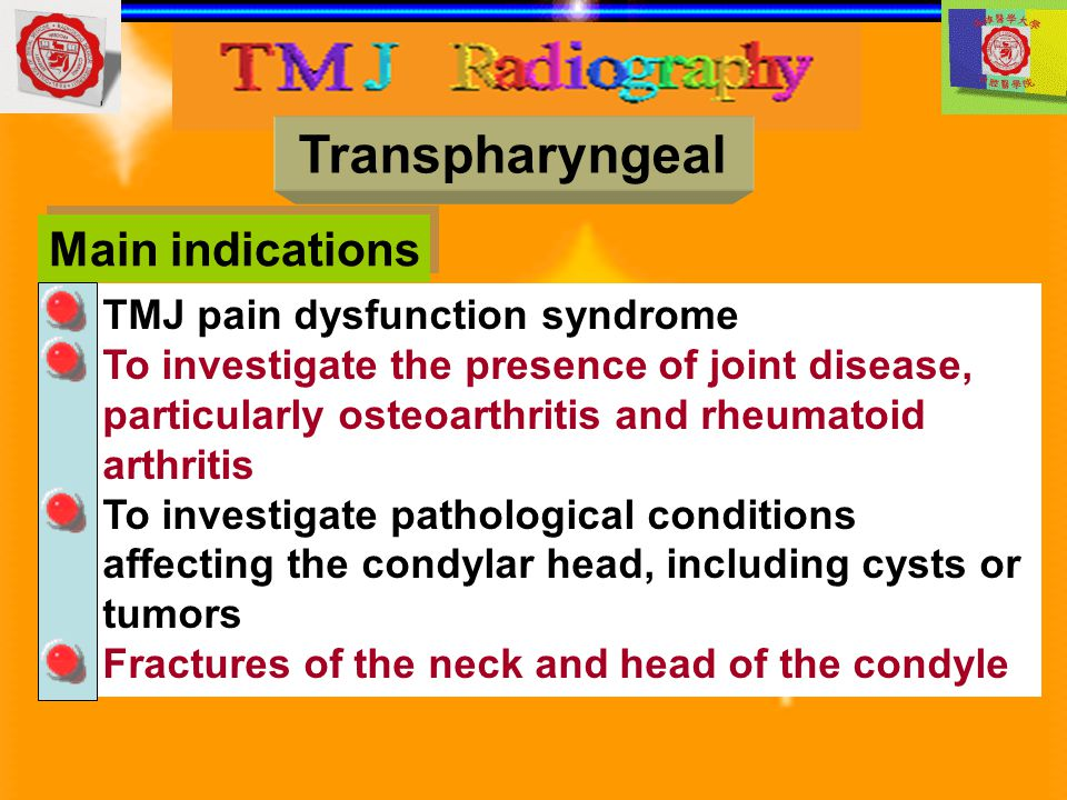 Transpharyngeal Main indications TMJ pain dysfunction syndrome