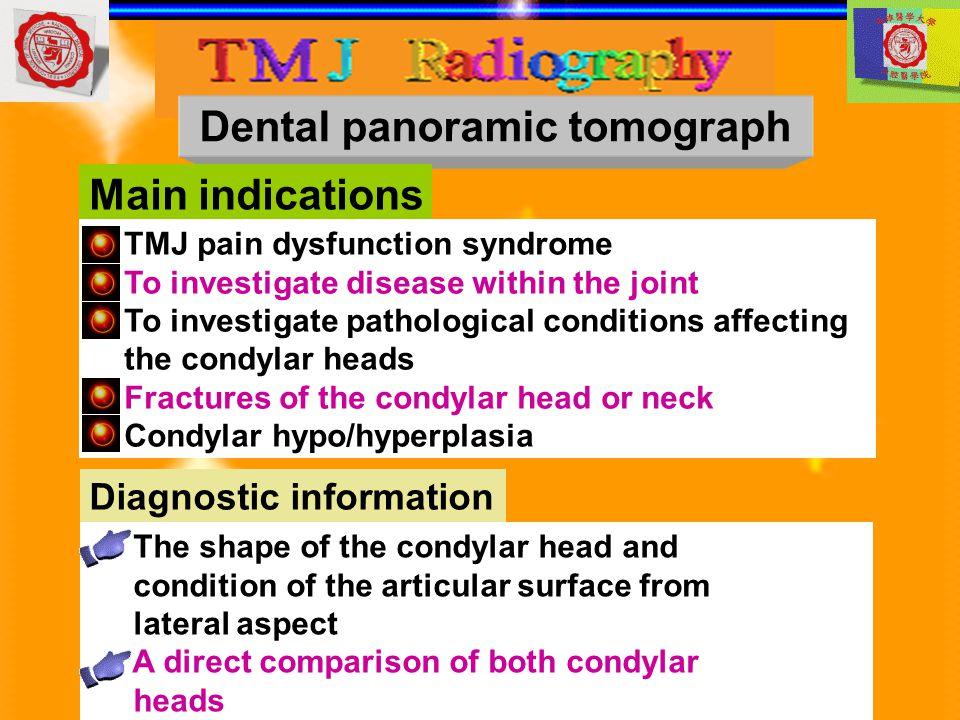 Dental panoramic tomograph