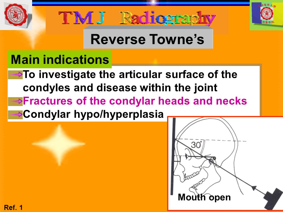 Reverse Towne's Main indications