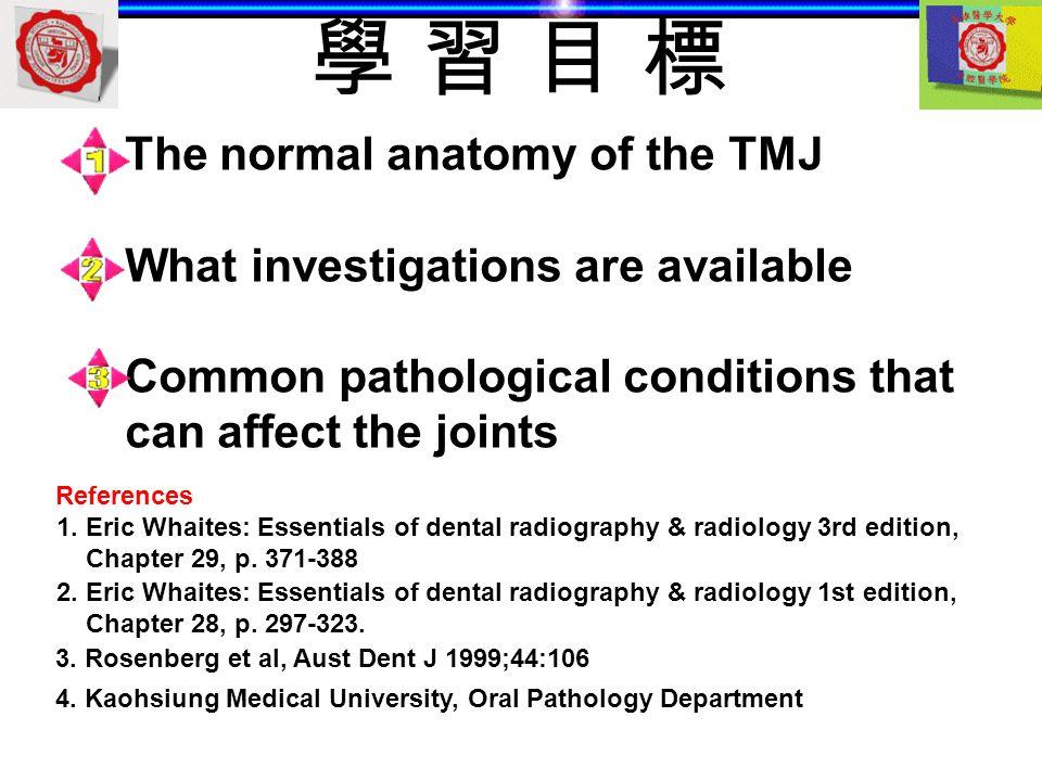 學 習 目 標 The normal anatomy of the TMJ