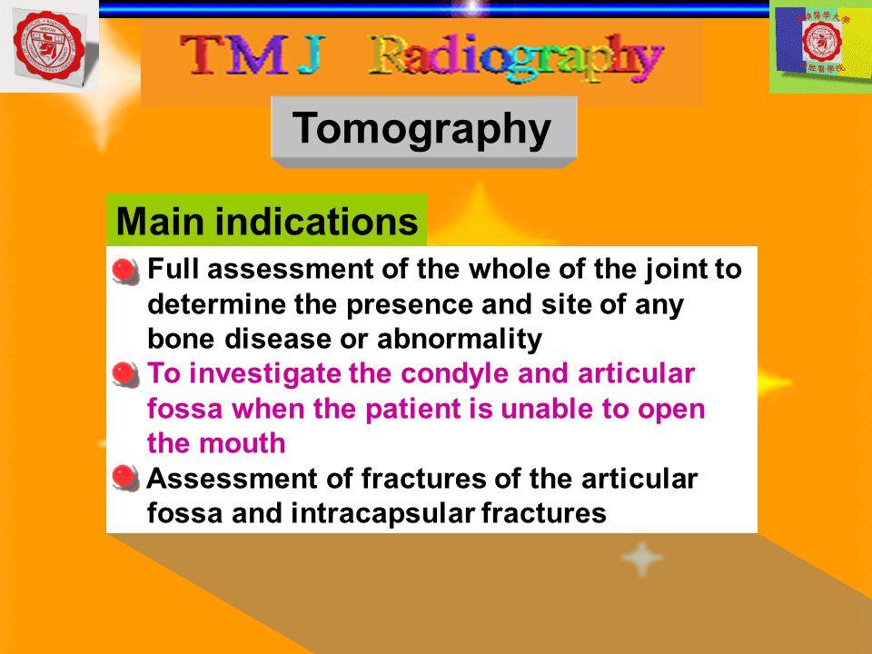 Tomography Main indications