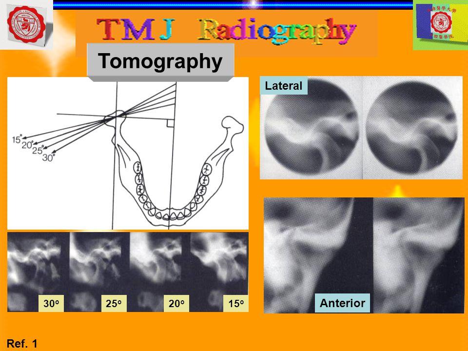 Tomography 15o 20o 25o 30o Lateral Anterior Ref. 1
