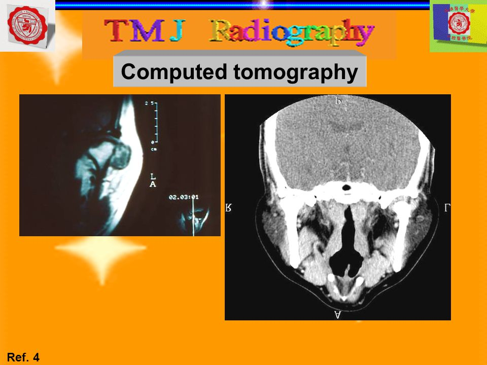 Computed tomography Ref. 4