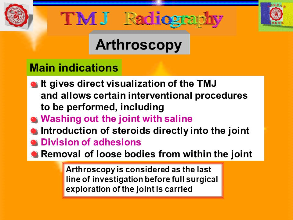 Arthroscopy Main indications It gives direct visualization of the TMJ