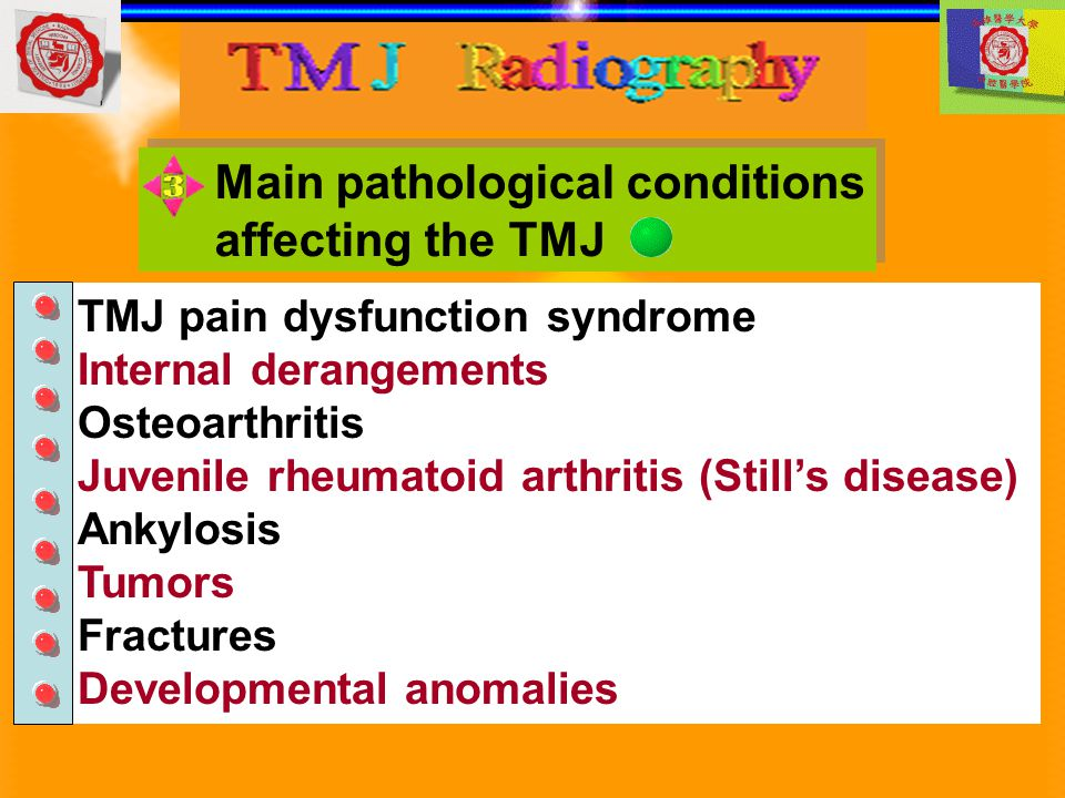 Main pathological conditions affecting the TMJ